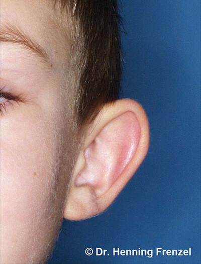 1 Abstehende Ohren