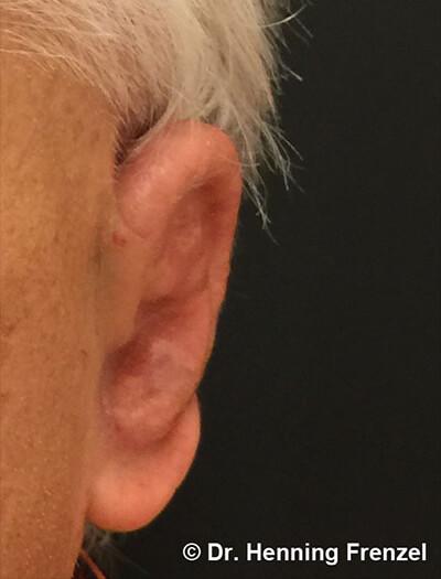 Ohrrekonstruktion aus Medpor