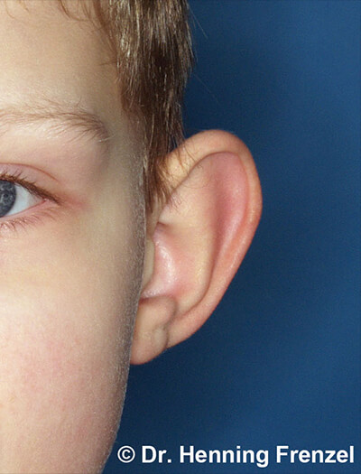 Ohrrekonstruktion - bei geringer Fehlbildung 1