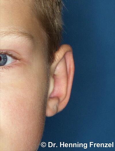 Ohrrekonstruktion - bei geringer Fehlbildung 2